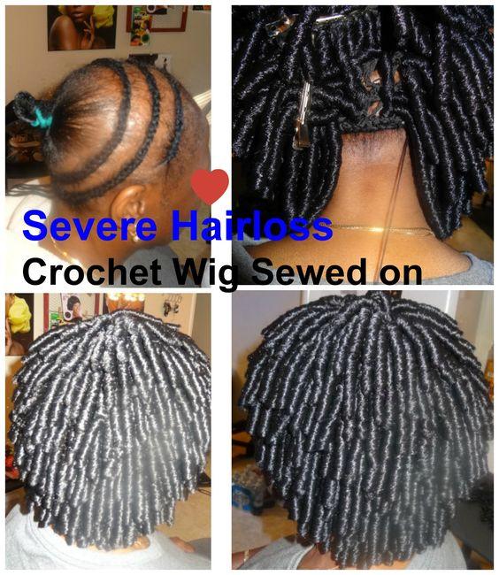 Crochet Braids Alopecia : SevereHairloss #HairlosssStylistInKennesawGa #Alopecia #CrochetWig