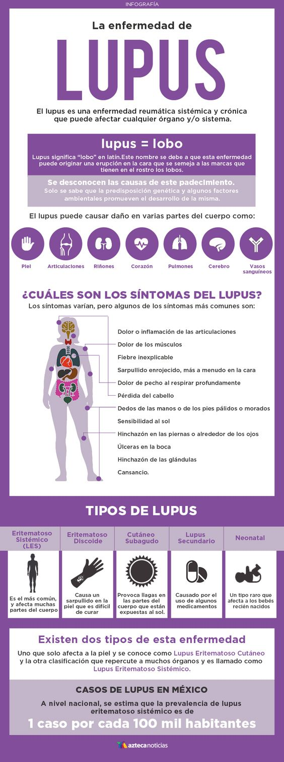 Conoce sobre la enfermedad de Lupus y aprende a prevenirla: