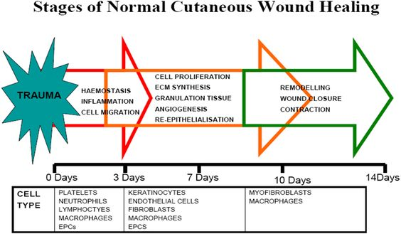 wound healing stages - Google Search Nursing and Beyond Pinterest - wound ostomy continence nurse sample resume