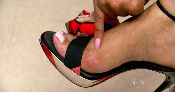 Cirurgia plástica para ajustar pés aos sapatos vira mania entre mulheres