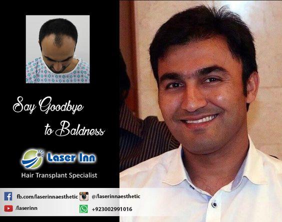 Get natural Hair line & maximum density by Pakistan's Pioneer Hair Transplant Specialist Dr Zulfiqar H.Tunio  Call Now : +923002991016  #hairtransplantkarachi #hairtransplantresults #hairtransplantpakistan