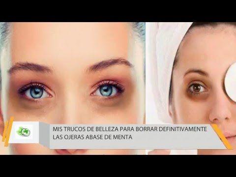Mis Trucos De Belleza Para Borrar Definitivamente Las Ojeras Con Menta - YouTube