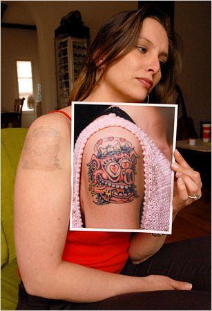 tatoeage verwijderen tatoeage verwijderen tatoeage verwijderen
