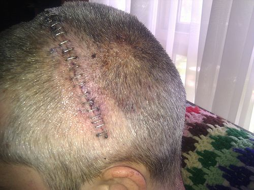 Brain Surgery Stitches