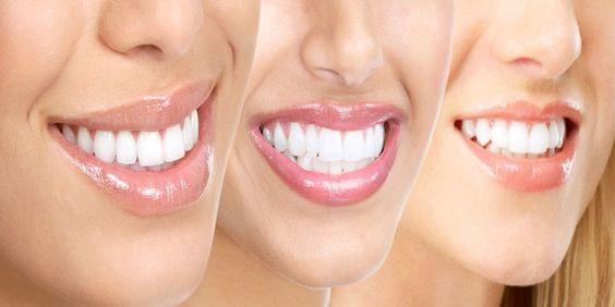 Aan prachtige witte tanden hoeft geen duur prijskaartje of bezoek aan de tandarts vast te hangen. Met deze handige tips maak jij je tanden gewoon zelf weer witter. 1. Poets je tanden met bakpoeder …