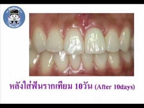 รากฟันเทียม- ถอนฟันหน้าพร้อมใส่ฟัน