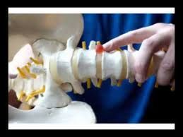 Image result for inversion therapy benefits