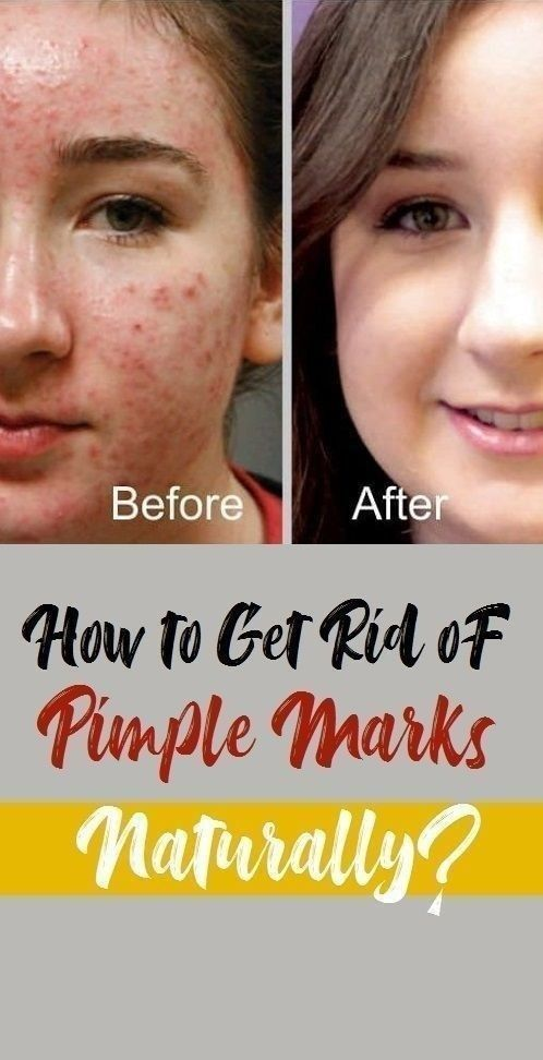 fda0a497f58161027053ddfcc141bcb6 - How To Get Rid Of Small Acne Scars On Face