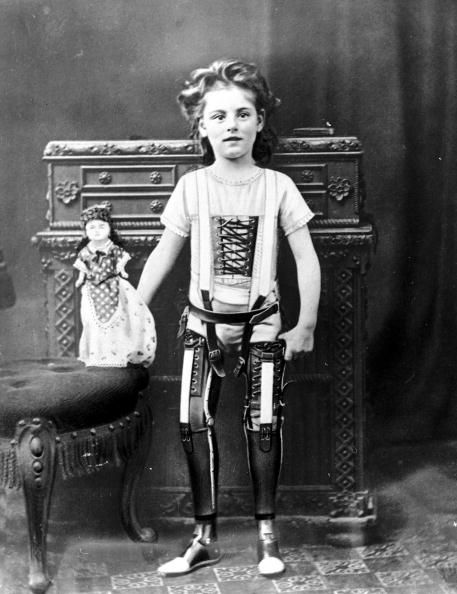 A young girl with her doll wearing a pair of artificial legs, 1890, UK.: