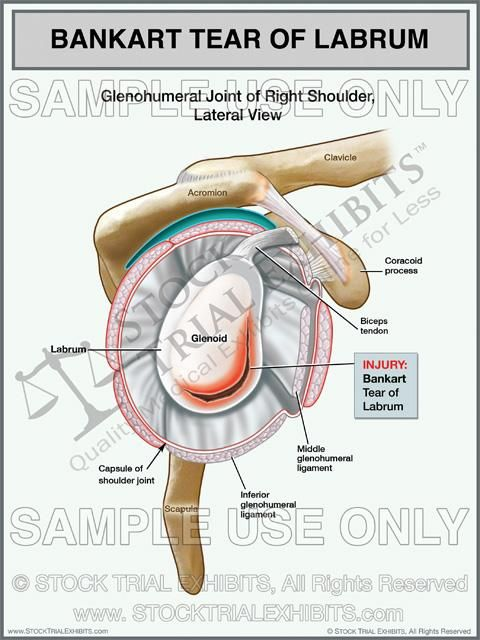 Bankart Tear Labrum Injury Of The Right Shoulder With Images