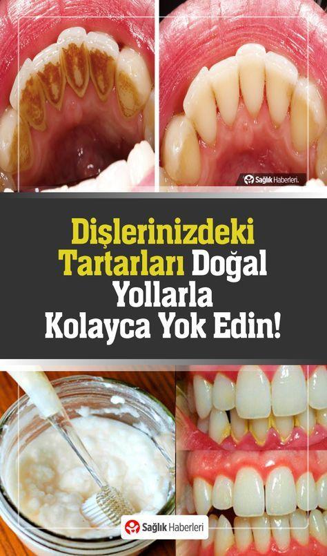 Hiçbir diş hekimi bunun bilinmesini istemez! Dişlerdeki plakları kolayca ortadan kaldırın! 1