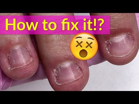 Transformation Of Extremely Bitten Nails With Acrylic Youtube Acrylic Nails At Home How To Do Nails Nails