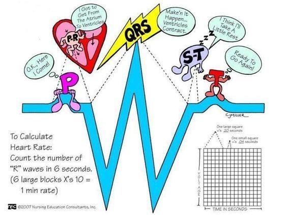 Ahhh... The EKG!!