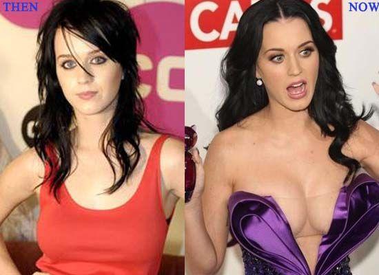 Katy Perry avant et après chirurgie esthétique