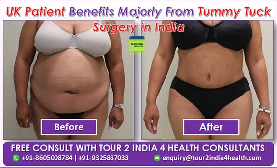 Hi, I am Michelle from UK, 32-years old and I had the fortunate experience of getting Tummy Tuck Surgery India