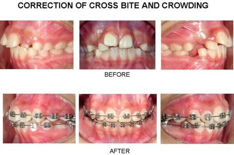 Correction Of Cross Bite and Crowding