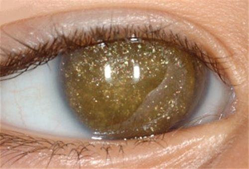 Anterior segment of the right eye filled with refractile yellow crystals in the treatment if retinoblastoma.