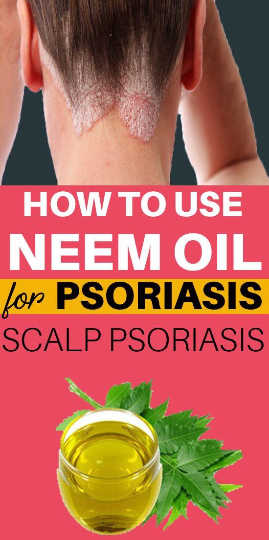 Pin By Kamran Mumtaz Kami On Skin Care Tips Psoriasis Scalp Psoriasis Psoriasis Skin