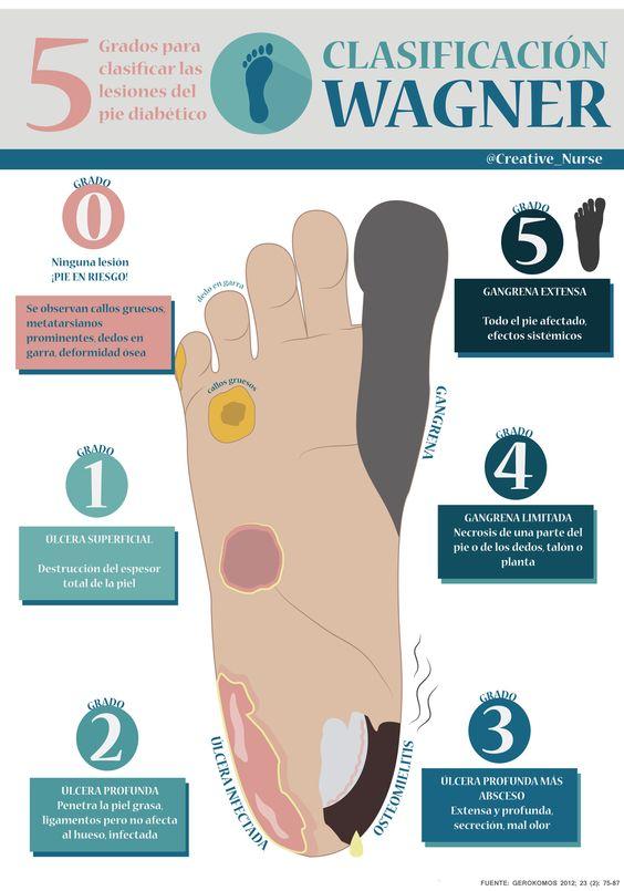 Infografías - Página web de creativenurse | Salud | Pinterest