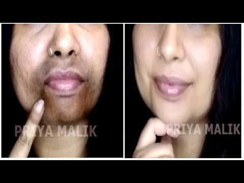 fef69d45423903924df086f262668189 - How To Get Rid Of Black Marks Around Mouth