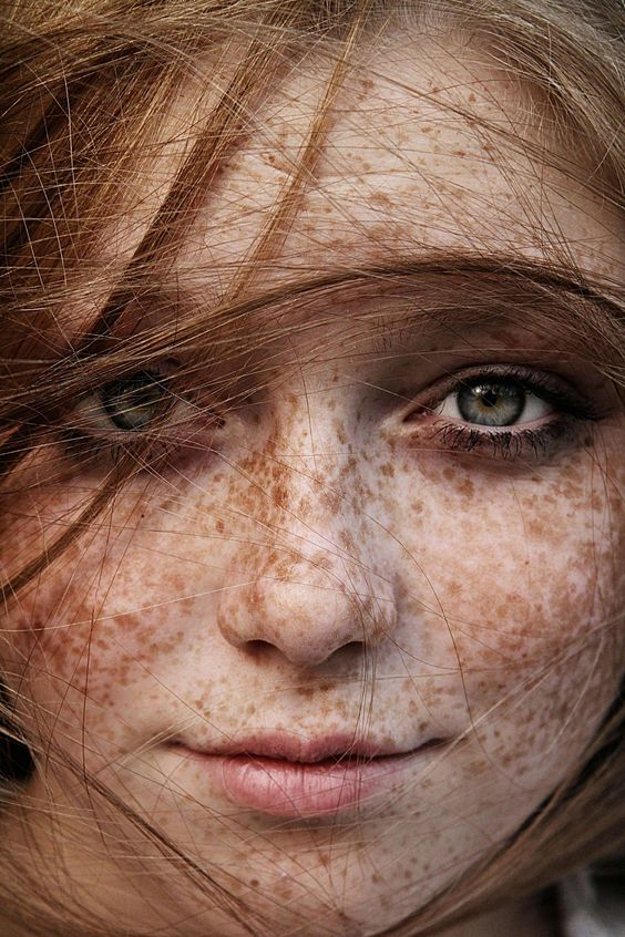 freckle-faced red head