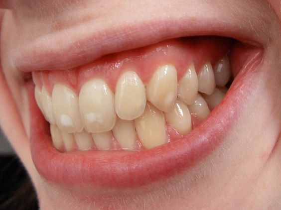 White spots on teeth is a frequent problem. Read our article to discover how you can get rid of these stains and also how you can prevent them.