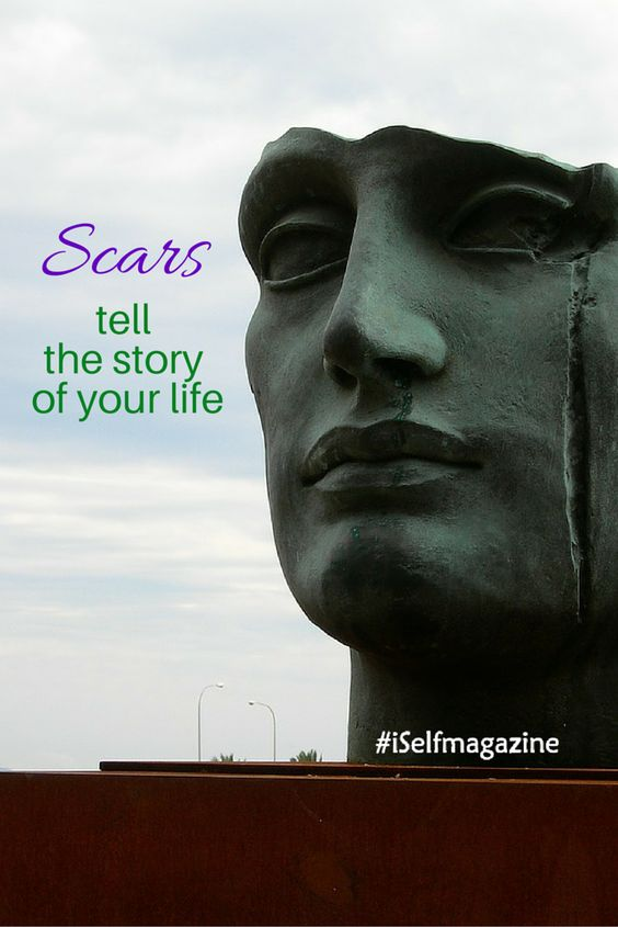 How do you see your scars? Scars can be beautiful and inspiring - they tell a story! They are not something to be ashamed of; they are part of you and your life story. #iselfmagazine #scarscanbebeautiful #ebraceyourscars #allbodiesarebeautiful #besetfree #beyourself #beunique #bodypositive #breakingbeautyideals #celebratelife #celebrateyou #confidencefromwithin #confidenceisbeauty #empowered  #iambeautiful #iambeautifulthewayIam #improveyourself #inspiringyou #justme #justmebeingme…