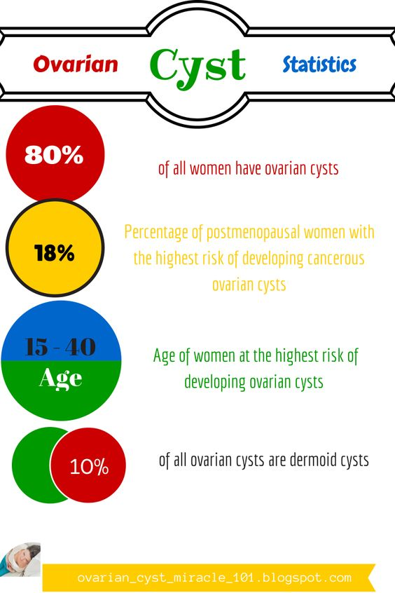 ovarian cysts by the numbers | Ovarian Cysts - The Best ...