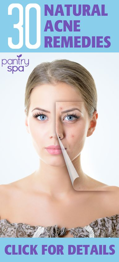 how to get rid of stubborn acne rosacea