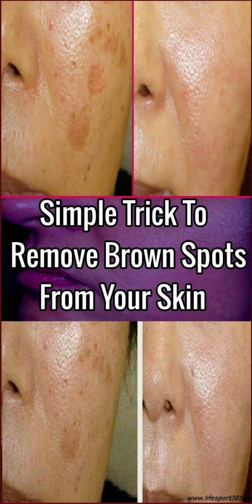 ffed1e9f1b910c42bfdf7ac9fa497ba3 - How To Get Rid Of Dirt Stains On Skin