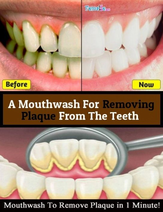 47+ Regrow teeth through meditation ideas