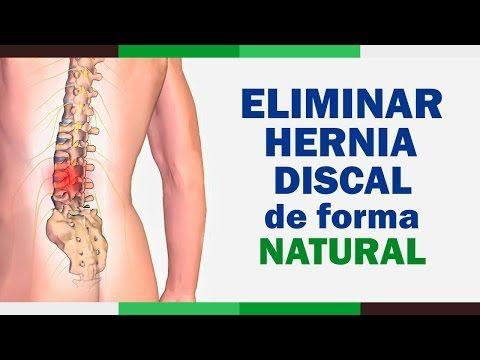 medicina natural para la hernia discal