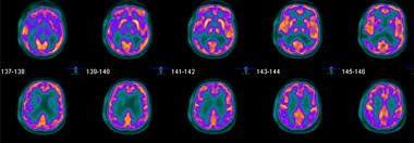 • PET-scan; Positron Emission Tomography - Google Zoeken
