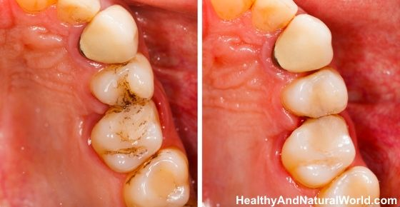 How To Heal Cavities And Tooth Decay Naturally Heal Cavities Teeth Health Tooth Decay