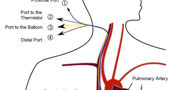 Swan Ganz Catheter Pulmonary Artery Catheterization