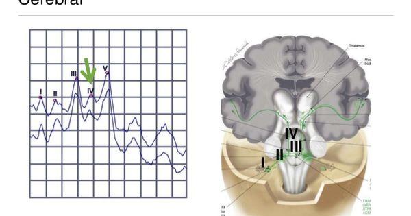 Potenciales Evocados Auditivos De Tronco Cerebral Buscar Con Google White Out