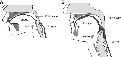 Oral motor dysphagia hairy pussy for Oral motor exercises for dysphagia