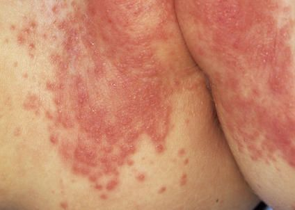 Visual Guide To Children S Rashes And Skin Conditions