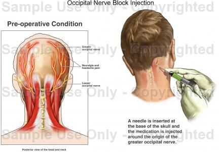 ON nerve block in neck | ON | Pinterest | Occipital nerve ...