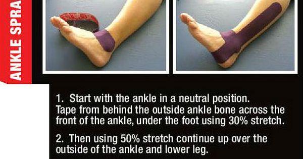 Ankle Sprain Diagnosis Sprained Ankle Sprain Kt Tape Ankle Sprain