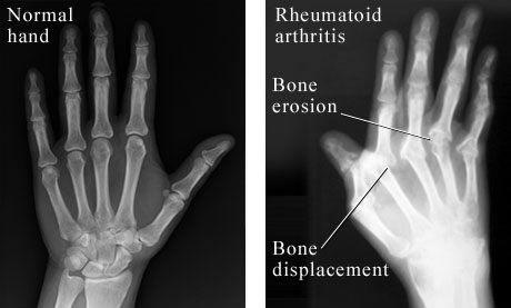 rheumatoid arthritis x ray stages)