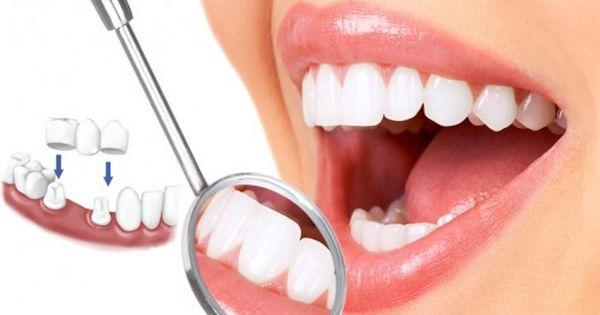 Bọc răng sứ sử dụng được bao lâu?