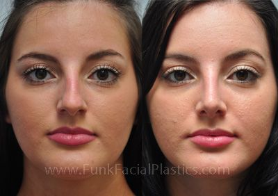 Rhinoplasty For A Bulbous Tip Wide Nasal Tip Surgery Funk Facial Plastic Surgery Rhinoplasty Facial Plastic Facial Plastic Surgery