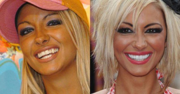Celebrity Smile Makeovers Celebrity Smiles Jodie Marsh Celebrities