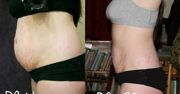 amazing Results by Jillian Michel and the good news is that Jillian