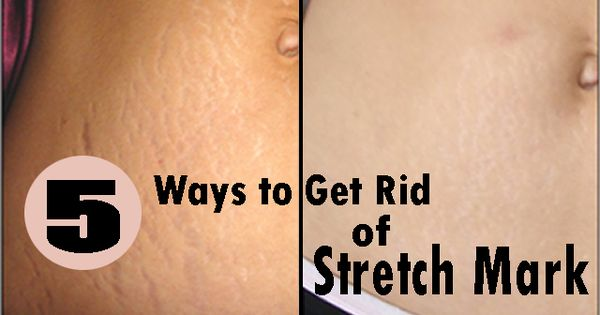 how to get rid of white stretch marks naturally