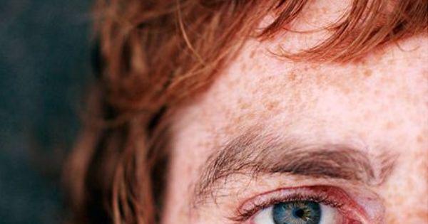 Como lutar contra pigmentary nota em um pescoço
