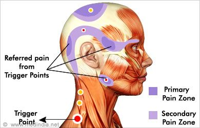 Pin On Muscle Trigger Point Release