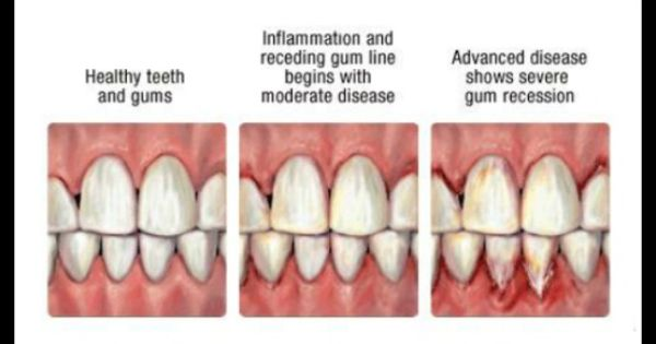 Healthy Vs Unhealthy Gums | www.imgkid.com - The Image Kid ...