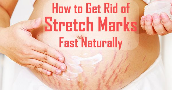 Need a quick fix for pesky stretch marks? Stretch marks ...